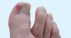 ongle incarné soins des pieds